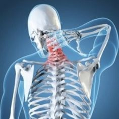 Neck And Upper Back Pain Relief