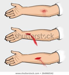 ed80890007f36 instructions to provide tourniquet - Google Search Stock Photos