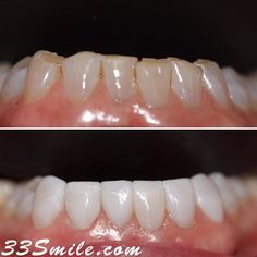 Happy Friday eve! We hope everyone is having a good week. This is another case where our patient came back years later to get her lower veneers done. We did a total of 6 and are loving the result. #drjamsmiles #33Smile . . All photos and video of patients are of our actual patients. All media is the of Cosmetic Dental Associates. Any use of media contained herein is prohibited without written consent. . . #satx #satxdentist #dentistry #goals #smile #teeth #instagoals #transformationtuesday #be Happy Friday Eve, Insta Goals, Dental Cosmetics, Smile Teeth, Dental Procedures, Cosmetic Dentistry, Transformation Tuesday, Beautiful Smile, Beaded Bracelets