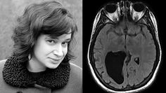 A woman who has a lemon-sized hole in her brain, which makes her unable to understand the directions, maths and many things, recently wrote a book Vision Therapy, Information Processing, Science And Nature, Writing A Book, Brain, Books, Lemon, Maths, Weird