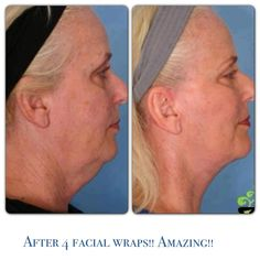 It Works!! After using 4 It Works facial wraps, these are the results!! This is amazing!!  www.sarahlamarlere.myitworks.com