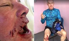 Texas dentist shares grisly photos from bull shark attack in Bahamas | Daily Mail Online