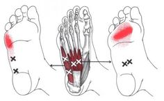 Flexor Digitorum Brevis (Foot) | The Trigger Point & Referred Pain Guide