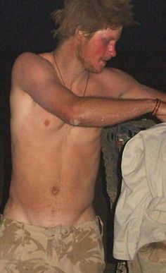 Uncensored nude Prince harry