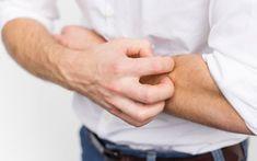 prevent eczema