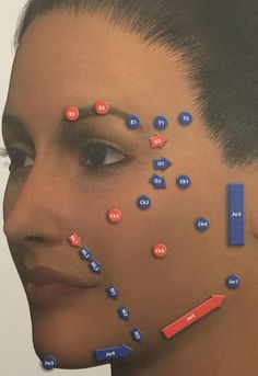 Facial MD Codes with Juvederm Vycross range, Dr Rekha Tailor
