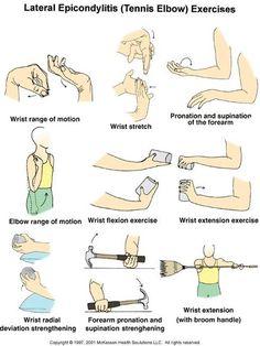 Chitra Physiotherapy & Rehabilitation Centre: Exercises for Elbow pain/Tennis Elbow Tennis Elbow Relief, Tennis Elbow Exercises, Tennis Elbow Symptoms, Tennis Arm, Play Tennis, Tendinitis Elbow, K Tape, Physical Therapy Exercises, Elbow Pain