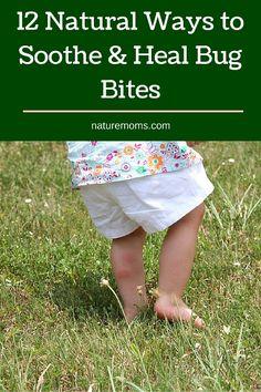 12 Natural Ways to Soothe & Heal Bug Bites