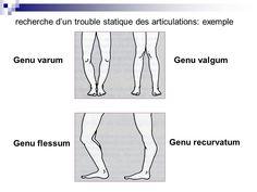 Image result for désalignement en varus d'attitude avec genou flessum