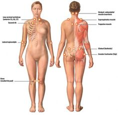 """Though awareness is spreading, fibromyalgia is still considered to be a """"controversial"""" diagnosis. This poses a problem for those of us who have it. Fibromyalgia Trigger Points, Fibromyalgia Treatment, Fibromyalgia Pain, Chronic Pain, Chronic Fatigue Syndrome, Chronic Illness, Endocannabinoid System, Invisible Illness, Autoimmune Disease"""