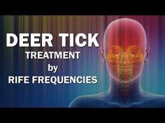 Deer Tick - RIFE Frequencies Treatment - Energy & Quantum Medicine with Bioresonance - https://www.youtube.com/watch?v=dyXuTNI3IeY