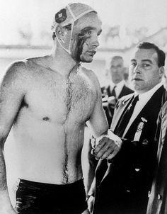 "Ervin Zádor Hungarian waterpolo player after the Hungary defeated the USSR in the ""Blood in the Water"" polo game in 1956. The Hungarian team won the game 4–0 and later was awarded the Olympic gold medal. The match was extremely violent, and was halted in the final minute to quell fighting amongst spectators."