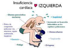 Resultado de imagen para insuficiencia cardiaca mnemotecnia