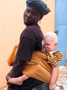 Beauty of Albinism: This mom from the West African country of Mali walked two days to get information to help her daughter, who has albinism. Their death rate is higher in African countries, where intense sunlight can cause skin cancers among those who are fair-skinned. (Rick Guidotti for Positive Exposure)