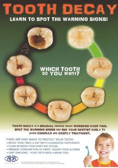 Tooth decay - learn to spot the warning signs! www.pecanparkdental.com