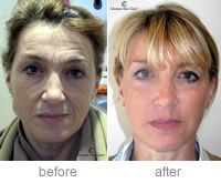 Before and after photo of Juvederm Voluma XC results.  Juvederm Voluma is a dermal filler that lasts 2 years available at Orlando medical spa Winter Park Laser.