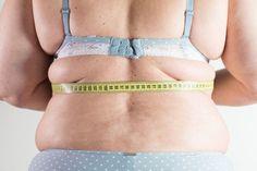 Stigmatisierung von Übergewicht – Auswirkungen auf Betroffene...
