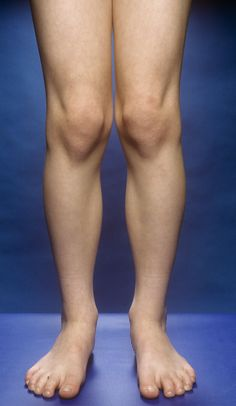Yoga Asanas To Cure Knock Knees - Women Fitness Knock Knees Exercises, Knee Pain Exercises, Genu Valgum, Knock Knees Correction, Knee Fat, Leg Anatomy, Human Anatomy, Bow Legged, Leg Training