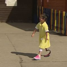 Friends welcome girl who got her prosthetic leg set up after she got back to school http://ift.tt/2p15Wy7