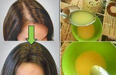Un des principaux problèmes avec les cheveux est sa perte. Cette perte peut être une conséquence du stress, de troubles hormonaux, etc. Découvrez, dans la