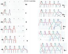 Ribbon Embroidery For Beginners Bobbin Lace lessons for beginners - Bobbin Lace Patterns, Tatting Patterns, Doily Patterns, Dress Patterns, Loom Patterns, Embroidery Patterns, Embroidery For Beginners, Knitting For Beginners, Embroidery Techniques