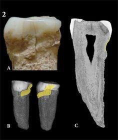 Foto del segundo premolar izquierdo (A), ATE-P4, del yacimiento de Sima del Elefante-Atapuerca (España). Reconstrucción 3D del premolar, en amarillo la marca alargada creada por el uso del palillo (B). Imagen parasagital de microtomografía computarizada del premolar, en amarillo, (arriba a la derecha), que describe el surco creado por el uso del palillo (C). Foto: Grupo de Antropología Dental del CENIEH.