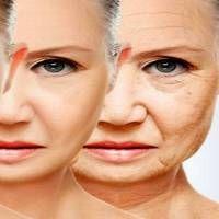Ha elkezded almaecettel ápolni az arcod, hamarosan 10 évet letagadhatsz! És ez nem vicc!