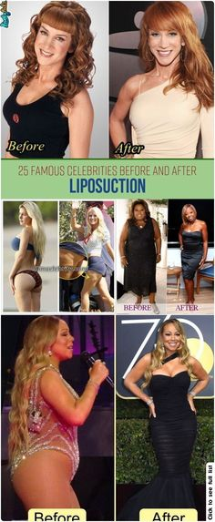 25 Famous Celebrities Before And After … – Plastic surgery diy. 25 Famous Celebrities Before And After … 25 Famous Celebrities Before And After Liposuction – Bad Plastic Surgeries, Plastic Surgery Gone Wrong, Celebrity Memes, Celebrity Workout, Before And After Liposuction, Famous Celebrities, Celebs, What Is Digital, Celebrities Before And After