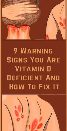 Vitamin D deficiency symptoms may not be obvious. If you notice any of these signs, consider seeing a doctor for a vitamin D blood test. Herbal Remedies, Health Remedies, Home Remedies, Natural Remedies, Wellness Fitness, Health And Wellness, Health Fitness, Fitness Tips, Health