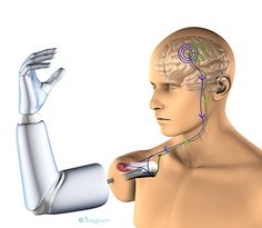"""2020:    """"Our technology helps amputees to control an artificial limb, in much the same way as their own biological hand or arm, via the person's own nerves and remaining muscles. This is a huge benefit for both the individual and to society"""", says Max Ortiz Catalan, industrial doctoral student at Chalmers University of Technology in Sweden."""