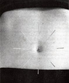 Acupuncture Helps Bladder Control Stops Leakage