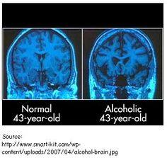 Brain variations.