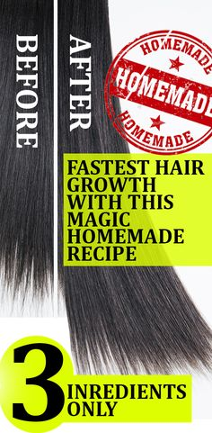 The Magic Homemade Recipe For Fastest Hair Growth! 3 Ingredients Only… Hair Growing Remedies, Hair Remedies For Growth, Hair Growth Tips, Diy Hair Treatment, Hair Growth Treatment, Natural Hair Tips, Natural Hair Styles, Best Hair Removal Products, Fast Hairstyles
