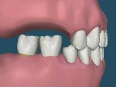 Halitosis (bad breath) can be solved with good oral hygiene Dental Design, Clinic Design, Dental Implant Procedure, Dental Implants, Gum Health, Oral Health, Dental Life, Best Oral, Dental Hygienist