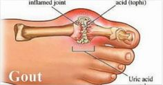 An overview by patient portal medeguru on what is gout. Information about the causes and symptoms of gouty arthritis and treatments available. Natural Health Remedies, Natural Cures, Natural Healing, Health And Beauty, Health And Wellness, Health Tips, Natural Medicine, Herbal Medicine, Natural Cure For Arthritis