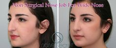 Nose Job Before And After - Our professionals have proven that nose enhancement doesn't require an expensive operation. A non-surgical effectively designed nose enhancer can change the shape of the nose and double the beauty of your face and expression.