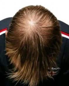 Laser Hair Therapy increases blood circulation in your entire scalp.