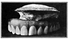 "Oyster Growing on a Set of False Teeth. ""Oysters will grow on almost any surface, including false teeth, if that's what happens to be available. The tooth-growing oyster shown above was found in the Chesapeake Bay in 1898, and sent to the Smithsonian where they were put on display and became quite a popular attraction."""