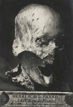 Creepy: King Henry IV's partially preserved head, which was separated from its body during the French Revolution, when monarchs' graves were desecrated. You can read more about it here as well.