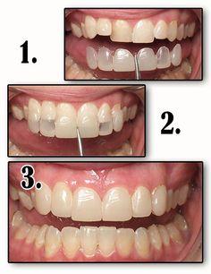 Así se alargan los dientes :#