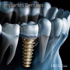 Dental Activities for Kids - Todo Sobre La Salud Bucal 2020 Oral Health, Dental Health, Muse Widgets, Halloween Teeth, Healthy Teeth, Mo S, Dental Implants, Preschool Activities, Barcelona