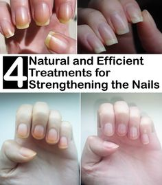 Are your nails suffering? Are they breaking down easily, are they yellowish and are always exfoliating? You need to know that diet is very important for the health of your nails and nail resistance…