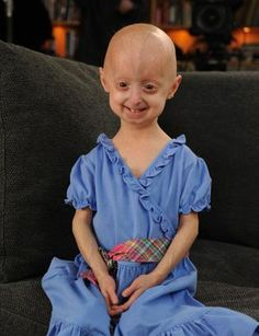 This little girl has Progeria. It's a disease that makes you look older than you are. She's about 4 years old. I think she is so adorable and beautiful. reblog if you think this little girl is beautiful!