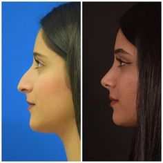 (disambiguation) Rhinoplasty is a plastic surgery procedure to improve the appearance or function of the nose. Rhinoplasty may also refer to: Acne On Nose, Nose Plastic Surgery, Nose Surgery, Bulbous Nose, Remove Blackheads From Nose, Pretty Nose, Nose Reshaping, Rhinoplasty Surgery, Beauty Tricks