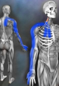 A muscle that could be causing numbness and tingling down the arm is a very very common area clients have tension or trigger points they had NO idea existed is Shoulder Trigger Points, Frozen Shoulder Pain, Arm Anatomy, Shoulder Problem, Ligaments And Tendons, Trigger Point Therapy, Muscles In Your Body, Muscle Body, Massage Techniques