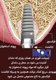 ایمپلنت یک روزه یا ایمپلنت فوری یا punch flapless technique، در واقع روشی است که ایمپلنت دندان در همان روز بلافاصله پس از کشیدن دندان در دهان قرار داده میشود، در این روش دندانپزشک باید ابتدا بافت نرم را موردبررسی قرار دهد. اگر میزان استخوان بهاندازه کافی،وجود داشته باشد جراحی قابل انجام است.در این روش دندانپزشک ابتدا دندان از دست رفته بیمار را از جای خود خارج می کند و سپس جراحی لازم را برای کاشت فیکسچر انجام می دهد ، پس از آن 3 تا 4 ماه برای بهبودی لثه و ثابت شدن فیکسچر صبر می کنند. Home Appliances, House Appliances, Appliances