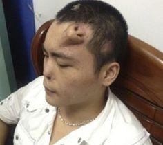 Cina, l'uomo con il naso sulla fronte