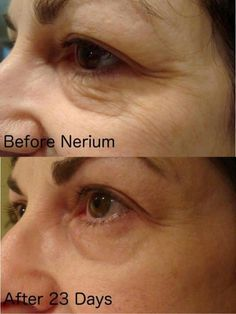 Visit www.colbentley.nerium.com to purchase or learn more about Nerium Internationals unique patent pending age-defying skincare product. Distributed exclusively through Independent Brand Partners.