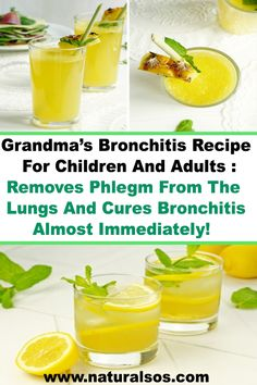 Grandma's Bronchitis Recipe For Children And Adults: Removes Phlegm From The Lungs And Cures Bronchi How To Cure Bronchitis, Cough Remedies For Kids, Natural Remedies For Bronchitis, Home Remedy For Cough, Natural Cold Remedies, Cold Home Remedies, Natural Remedies For Anxiety, Chest Congestion Remedies, Phlem Remedies