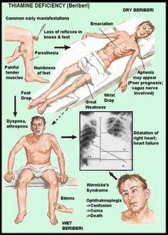 Wernicke's Encephalopathy - RNpedia.com